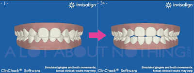 Invisalign Tooth Movement